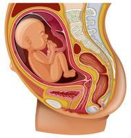 البواسير عند النساء الحوامل