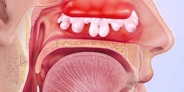 как избавится от заложенности носа во время простуды