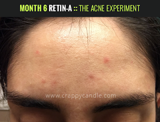 Month 6 on Retin-A :: The Acne Experiment