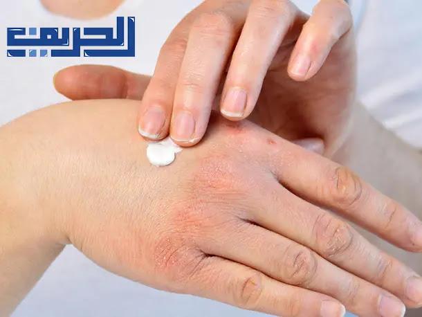اعراض الروماتيزم في اليدين