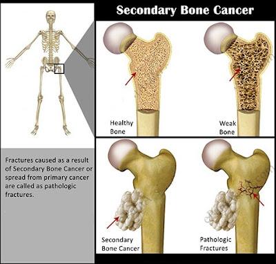 Ciri Gejala Penyakit Kanker Tulang