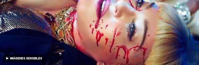 """VER : """"God Control"""": Madonna recreó la masacre del club Pulse y desató otra polémica"""