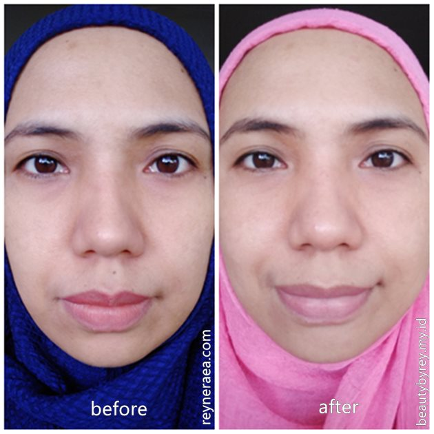 before after testimoni minuman kecantikan roove