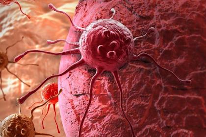 Cara Menghindari penyakit Kanker Dan Pengobatan Menurut Dr Gupta
