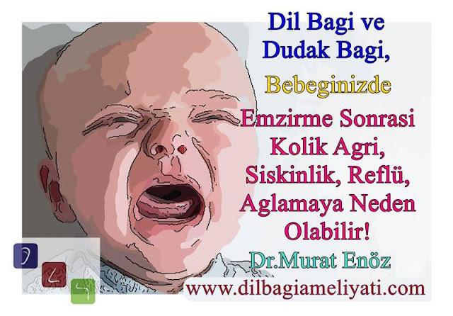 Dil Bağı ve Dudak Bağı, Bebeklerde Hava Yutma ve Reflüye Neden Olabilir!