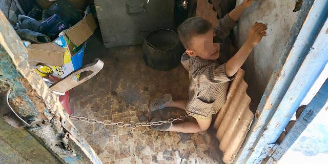 В Краснодарском крае отец несколько месяцев держал на цепи 10-летнего сына!!!