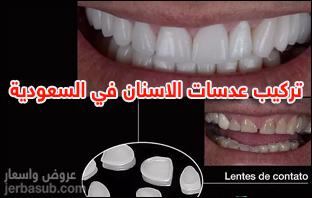 أسعار عدسات الأسنان في السعودية