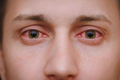 Empat Kondisi Mata ini Bisa Jadi Gejala Infeksi Virus Corona