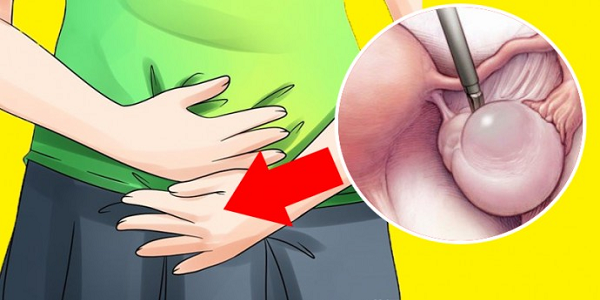 Early Warning Signs Of Ovarian Cysts Most Women Ignore Every Day (And What To Do If You See Them)