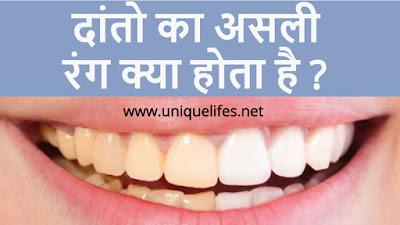 दांतो को असली रंग क्या होता है ? What Should be Real Colour Of Teeth ?