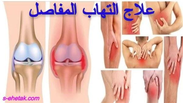 علاج التهاب المفاصل والعضلات