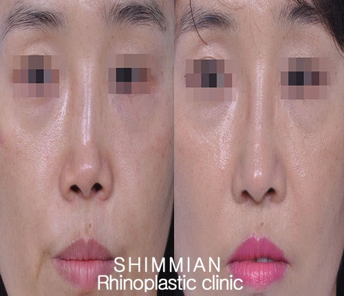 Distorted nose Revision Rhinoplasty