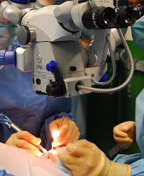 LASIK Eye Surgery - How LASIK Eye Surgery Can Benefit for You?