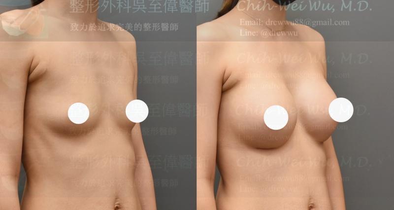2020年最新胸下緣雙平面果凍矽膠隆乳案例(隆乳權威吳至偉醫師)