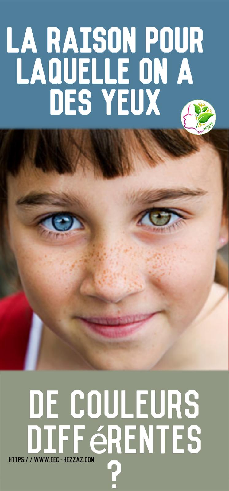La raison pour laquelle on a des yeux de couleurs différentes?