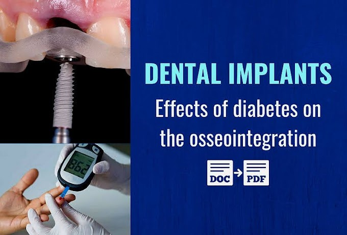 PDF: Effects of diabetes on the osseointegration of dental implants