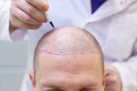 Ile kosztuje przeszczep włosów - gdzie najlepiej go wykonać?
