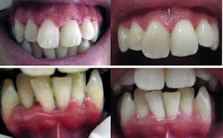 """<Img src =""""Imágenes-periodontitis-sin-y-con-tratamiento.jpg"""" width = """"593"""" height """"368"""" border = """"0"""" alt = """"Fotos antes y después de periodontitis tratada por sarro dental."""">"""
