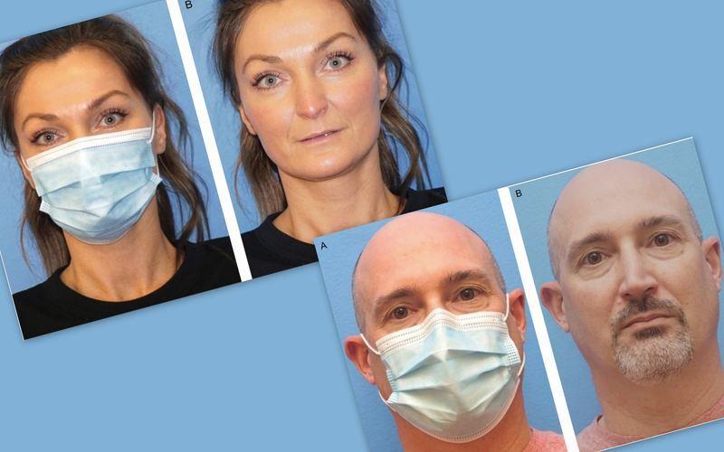 Desde a propagação do novo coronavírus em 2020, o uso de máscaras se tornou algo comum e frequente na rotina das pessoas. O acessório, fundamental para a proteção da vida, também nos trouxe pequenos incômodos estéticos, como a maskne – a acne causada pelo uso excessivo de máscaras. Entretanto, algo curioso e positivo chamou a atenção de alguns pesquisadores americanos.