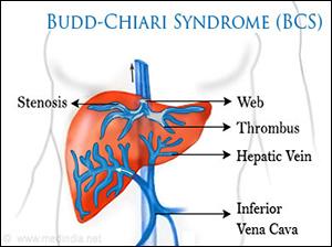 budd–chiari syndrome, BCS