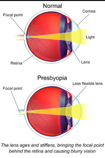 presbyopia correction