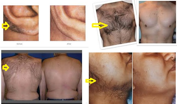 Krozenwart 08152054076 Dr Timco Peel An Nonlaser Permanent Hair Removal Men Women Cost