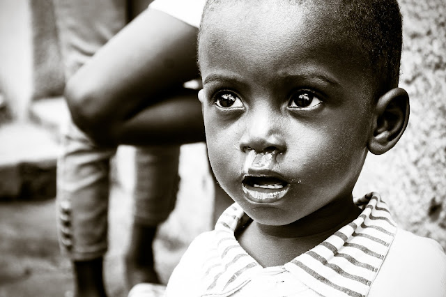 African child affected by Malaria