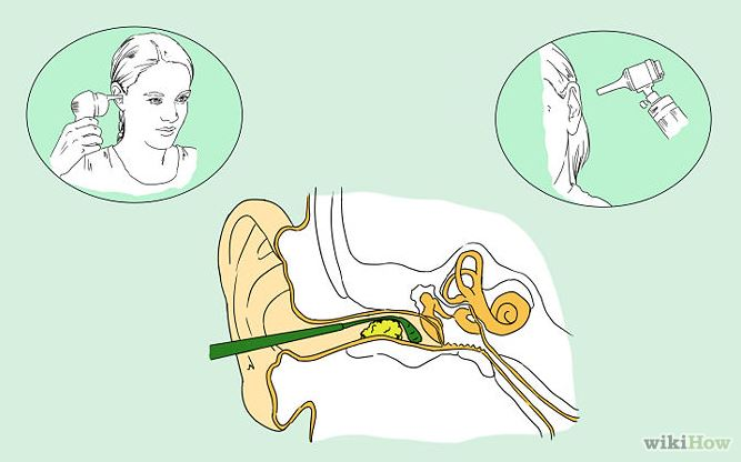 how to clean out your ears properly & remove ear wax – according, Skeleton