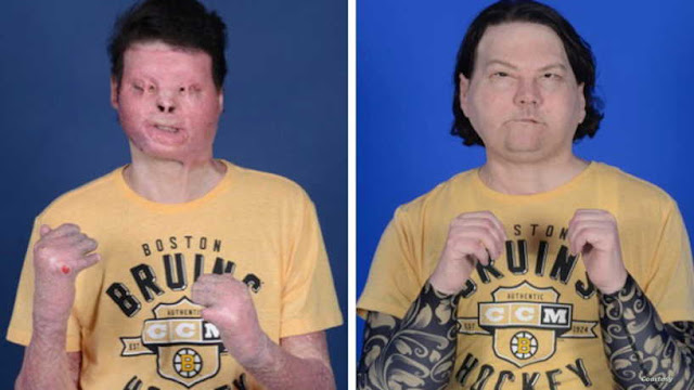 'New chance at life': Man gets face, hands in rare surgery