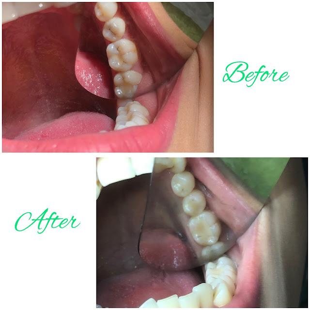 Before-After Tambal Gigi Kiri Bawah