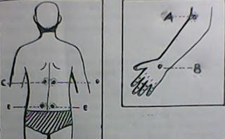 Pengobatan Reumatik Kronik Cara Pijat dan Ramuan Alami.
