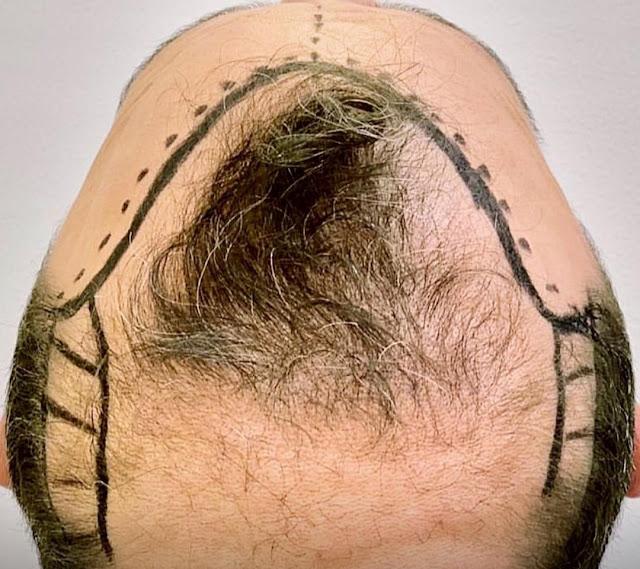 Pourquoi Tricopigmentation au lieu de la greffe de cheveux ?