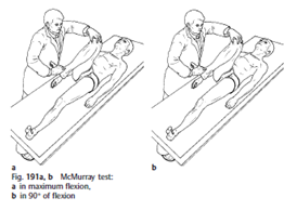 RHB and Physical Medicine: MENISCAL INJURIES