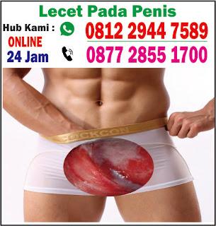 Mr P lecet dan gatal - obat lecet pada kelamin pria alami