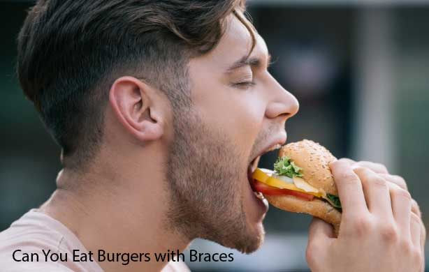 can you eat burgers with braces