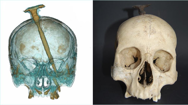 The Iberians included women's severed heads among their trophies
