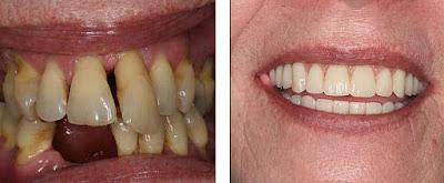 Perokok yang kehilangan giginya kembali tersenyum