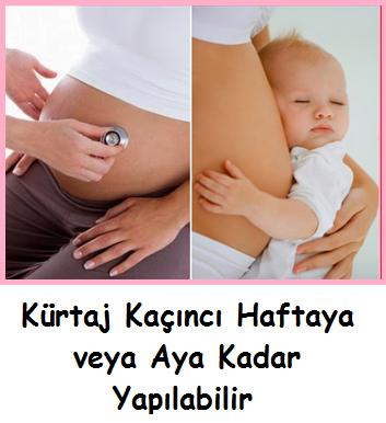 Kürtaj kaçıncı haftaya (aya) kadar yapılabilir