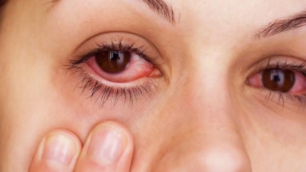اسباب احمرار العين وطرق العلاج بوصفات طبيعية ووصفات طبية