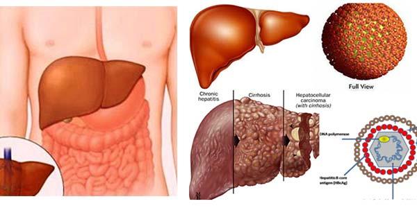 Kiến thức phòng tránh bệnh viêm gan B