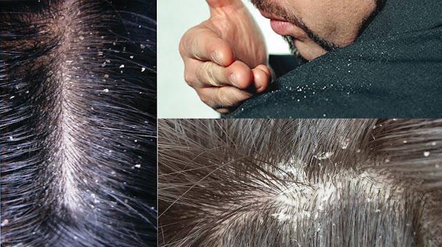طريقة علاج قشرة الشعر بالأعشاب
