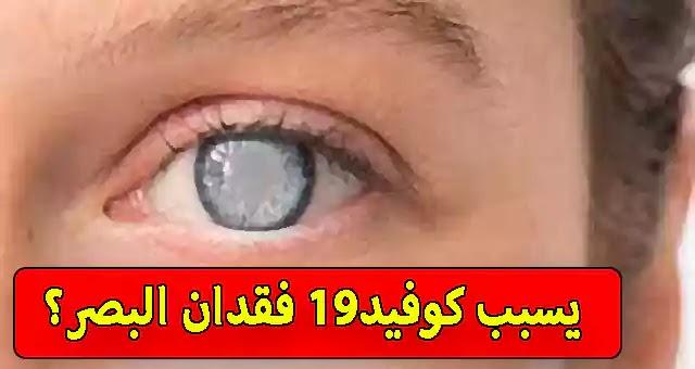 هل يمكن أن يسبب Covid-19 فقدان البصر؟