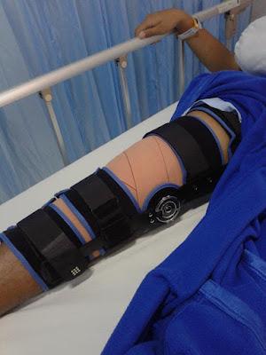 Pengalaman cedera acl, fase penyembuhan acl, operasi ligamen, acl dan mclBerapa lama cedera ACL sembuh?, Cedera ACL karena apa?, Apakah operasi ACL?, Berapa lama bengkak setelah operasi ACL?, fisioterapi acl, cara menyembuhkan cedera lutut yang sudah lama, penyembuhan cedera acl tanpa operasi, acl surgery adalah, penyebab acl, cedera acl dan pcl, berapa lama cedera lutut sembuh, cara mencegah acl, acl injury, cedera acl, pengalaman cedera acl, pengalaman operasi acl, pengalaman rekonstruksi acl, pengalaman acl pututs, biaya operasi acl, sembuh dari cedera acl, setelah operasi acl, knee brace acl, cedera acl, setelah rekonstruksi cedera acl dan meniskus, cedera acl dan meniskus, operasi cedera acl dan meniskus robek, cedera otot, ligamen adalah, ligamen, acl adalah, cedera lutut, ligamen lutut, otot robek, operasi acl adalah, acl lutut, acl putus, cedera ligamen lutut