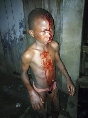 PHOTOS: Little Boy In Blood After Assaulted By His Mother