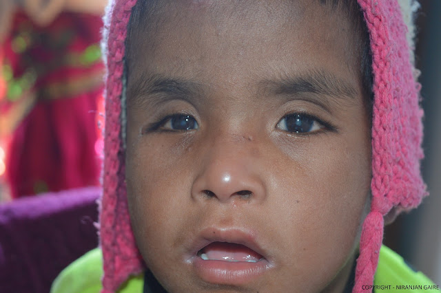 Small Kid having Cataract on his both eyes