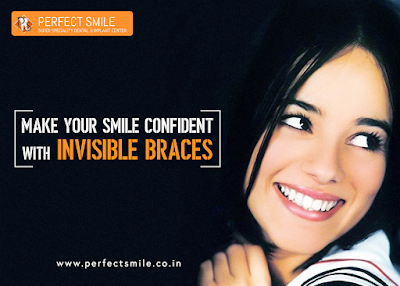 http://www.perfectsmile.co.in/invisible-braces.html