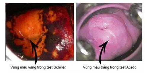 test acid và lugol soi cổ tử cung