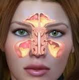 Obat Sinusitis Maksilaris Tradisional