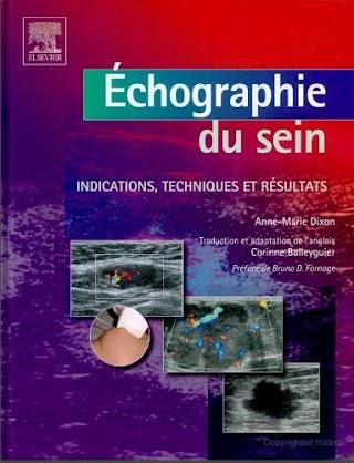 Echographie du sein indications,techniques et résultats