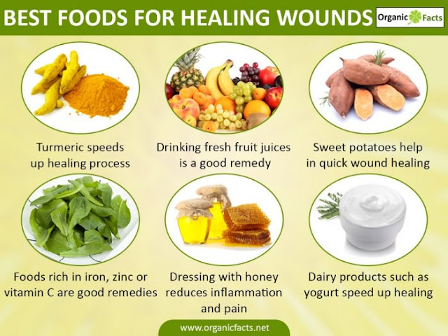 Best Foods for Healing Wounds